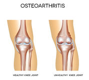 Healthy knee and knee with osteoarthritis Royalty Free Stock Image