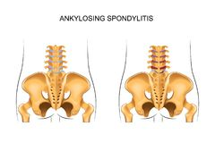 Healthy lower back and ankylosing spondylitis. Vector illustration of a healthy lower back and ankylosing spondylitis Stock Photo