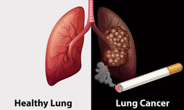 Healthy lung against lung cancer diagram Stock Photo