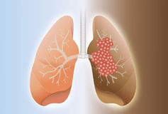 Healthy lung and cancer lung. Comparative between healthy lung and cancer lung on difference background Royalty Free Stock Image