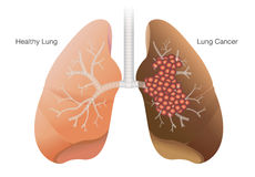 Healthy lung and cancer lung. Comparison between healthy lung and cancer lung  on white background Stock Photo