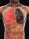 Healthy Lung and Smokers Lung Stock Images
