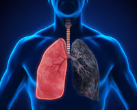 Healthy Lung and Smokers Lung Royalty Free Stock Photo