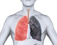Healthy Lung and Smokers Lung. Illustration. 3D render Stock Image
