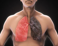 Healthy Lung and Smokers Lung. Illustration. 3D render Royalty Free Stock Image