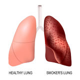 Healthy lungs and smokers lungs. Smoker`s lung and healthy lung. before and after a lifetime of smoking vector illustration