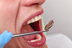 Healthy man teeth Royalty Free Stock Image