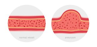 Healthy and sick aneurysm human vessel. Healthy vessel and sick vessel with aneurysm with blood cells flat vector illustration stock illustration