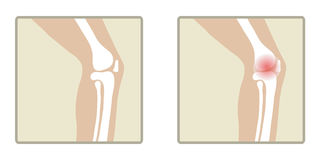 Healthy and sick knee. Flat design, vector illustration, vector Royalty Free Stock Photography