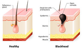 Healthy skin and Blackheads royalty free illustration