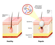 Healthy skin and Papules stock illustration