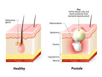 Healthy skin and Pustules stock illustration