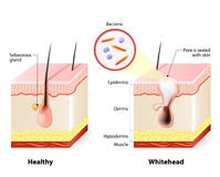 Healthy skin and Whiteheads. Types of acne pimples Royalty Free Stock Photography
