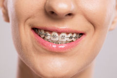 Healthy smile with braces Stock Photos