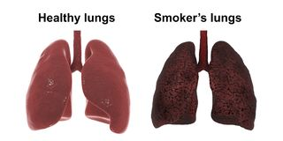 Healthy and smoker`s lungs isolated on white background, medical concept,. 3D illustration stock illustration