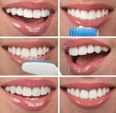 Healthy Teeth Royalty Free Stock Photos