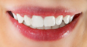 Healthy teeth. Closeup of the white healthy teeth of a caucasian smiling woman Royalty Free Stock Photos