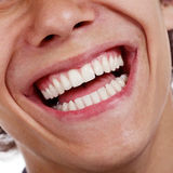Healthy teeth closeup Royalty Free Stock Images