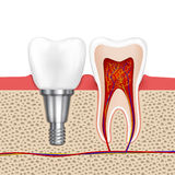 Healthy teeth and dental implant Royalty Free Stock Photo