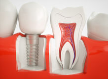 Healthy teeth and an implant - 3d rendering royalty free stock photos