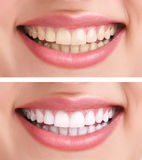 Healthy teeth and smile. Whitening - bleaching treatment ,before and after ,woman teeth and smile, close up, isolated on white Stock Photography