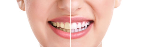 Healthy teeth and smile. Woman teeth and smile, close up, isolated on white, whitening treatment Royalty Free Stock Photo