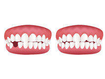 Healthy tooth model. Illustration of healthy teeth and bad teeth model Stock Images