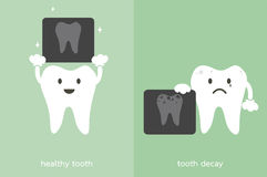 Healthy tooth and tooth decay holding dental x-ray film Stock Images