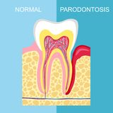 Healthy tooth and tooth with periodontal disease. anatomy of human organs. Tooth periodontal disease. Vector image tooth Periodont vector illustration