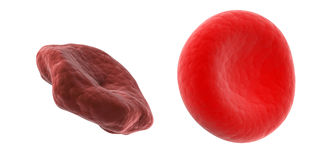 Healthy and unhealthy blood cell Royalty Free Stock Images