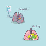Healthy and unhealthy lung Stock Images