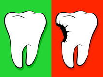 Healthy And Unhealthy Tooth Cartoon caries Royalty Free Stock Photo