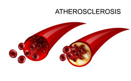 The healthy vessel and atherosclerotic Royalty Free Stock Photography