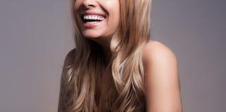 Adult beautiful blond woman with white veneers on the teeth.