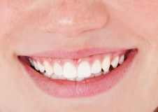 Healthy white teeth Stock Photos