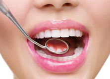 Healthy white woman's teeth and a dentist mouth mirror. Closeup Stock Image