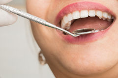 Healthy woman teeth and a dentist mouth mirror Royalty Free Stock Image