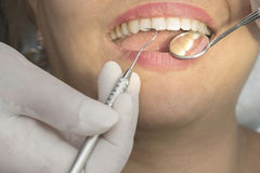 Healthy woman teeth and a dentist mouth mirror Royalty Free Stock Images