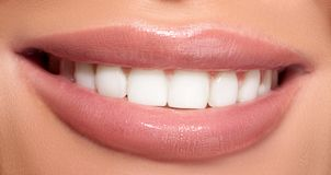 Healthy woman teeth and smile Stock Photos