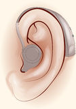 Hearing aid. Human ear with a Stock Image