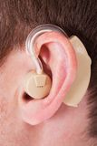 Hearing Aid On The Man's Ear. Close-up Of Hearing Aid On The Man's Ear stock photo