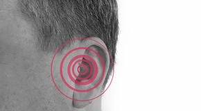 Hearing loss male defect symptom diagnosis loud problem. Hearing loss symptom defect sign diagnosis loud problem stock photo
