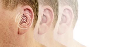 Hearing loss male defect symptom. Hearing loss male symptom defect stock photography