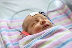 Hearing test of a sleeping newborn at hospital. Nursery with cables attached royalty free stock photo