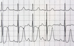 Heart analysis, electrocardiogram graph Royalty Free Stock Images