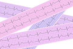 Heart analysis, electrocardiogram graph Stock Photo