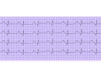 Heart analysis, electrocardiogram graph Stock Photos