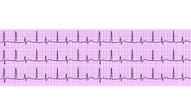 Heart analysis, electrocardiogram graph (ECG) Stock Images
