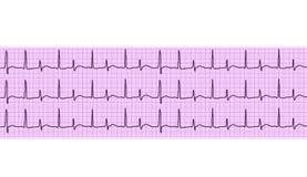 Heart analysis, electrocardiogram graph (ECG) Stock Images