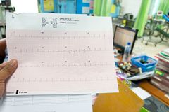 Heart analysis, electrocardiogram graph ECG in hand doctor at the hospital.  royalty free stock images